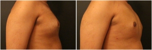 gynecomastia-surgery-nyc-before-and-after1-3