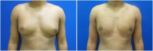 gynecomastia-surgery-nyc-before-and-after2-1