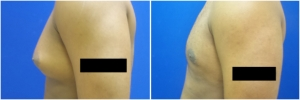 gynecomastia-surgery-nyc-before-and-after2-2