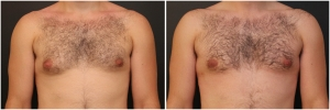 gynecomastia-surgery-nyc-before-and-after3-1