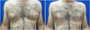 gynecomastia-surgery-nyc-before-and-after4-2