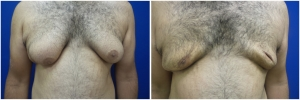 gynecomastia-surgery-nyc-before-and-after5-1