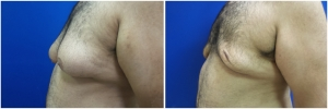 gynecomastia-surgery-nyc-before-and-after5-3